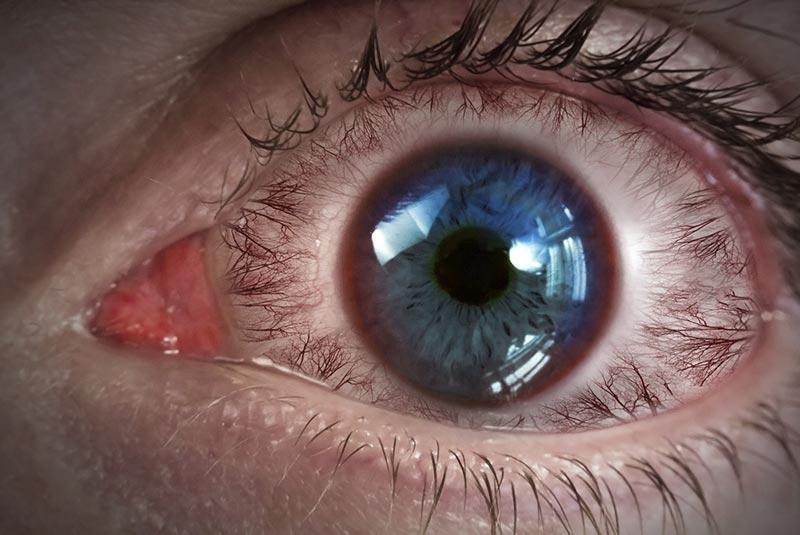 Bezpieczeństwo fotobiologiczne - podrażnione oko